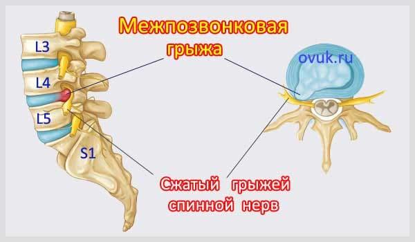 Mezhpozvonkovaya-gryzha